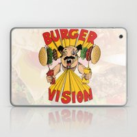 Burger Vision Laptop & iPad Skin