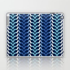 Banana Fun Chevron Navy combo Laptop & iPad Skin