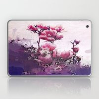 A lover's touch Laptop & iPad Skin