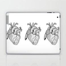 Study of the Heart Laptop & iPad Skin