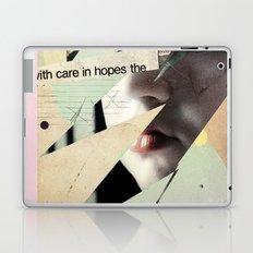 Forgotten Favourite Laptop & iPad Skin