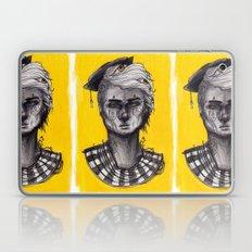 Seen in Yellow Laptop & iPad Skin