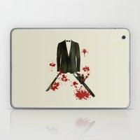 Smoking kills! Laptop & iPad Skin