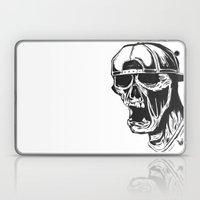 SNAPBACK Laptop & iPad Skin