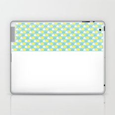 Teal and Yellow Pattern Laptop & iPad Skin