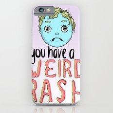 Weird Rash Slim Case iPhone 6s