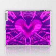 WEB OF LOVE Laptop & iPad Skin