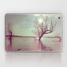 Peaceful Lake! Laptop & iPad Skin