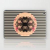 M.D.C.N. Xiv Laptop & iPad Skin