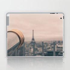 Looking Through Laptop & iPad Skin