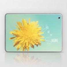 You are my Sunshine Laptop & iPad Skin