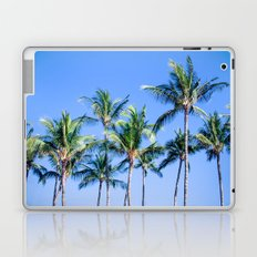 Palms in Living Harmony Laptop & iPad Skin
