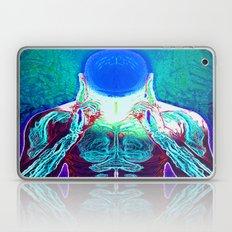 MIND #1 Psychedelic Medi… Laptop & iPad Skin