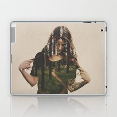 Became Laptop & iPad Skin
