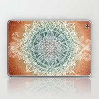 Burning With Desire Laptop & iPad Skin