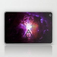 Expecto Patronum Laptop & iPad Skin