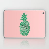Rad Pineapple Laptop & iPad Skin
