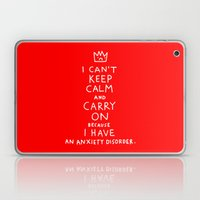 i broke an promise to myself to never make one of these stupid posters Laptop & iPad Skin