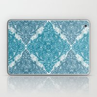 Teal & White Lace Pencil Doodle Laptop & iPad Skin