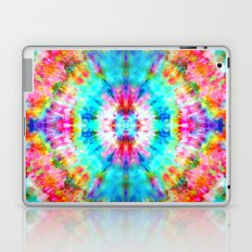 Rainbow Sunburst Laptop & iPad Skin