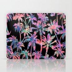Maui Palm {Black} Laptop & iPad Skin