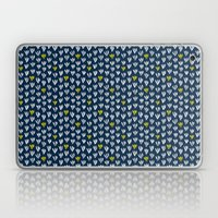 Pattern In Blue And Yell… Laptop & iPad Skin