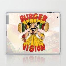 Burger Vision Laptop & iPad Skin