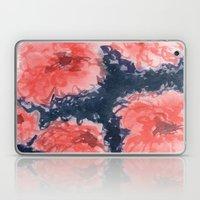 Stark Blumen Laptop & iPad Skin
