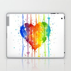 Heart Rainbow Watercolor | Love Wins Laptop & iPad Skin