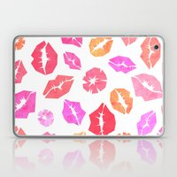 Kisses All Over You Laptop & iPad Skin