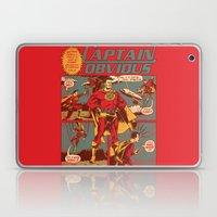 Captain Obvious! Laptop & iPad Skin