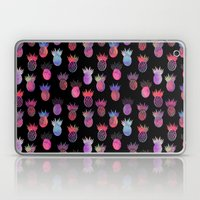 Tutti Frutti Black Laptop & iPad Skin