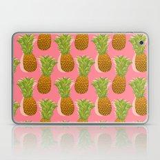Pineapple Pop Art Patter… Laptop & iPad Skin
