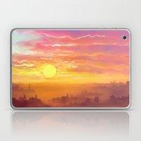Under the sun Laptop & iPad Skin