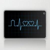 Two Heartbeats Laptop & iPad Skin
