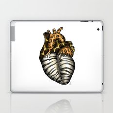 Heart gone wild - color  Laptop & iPad Skin