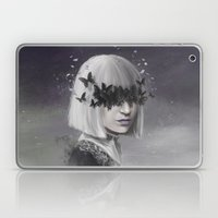 100 Forms of Fear / Sia Laptop & iPad Skin