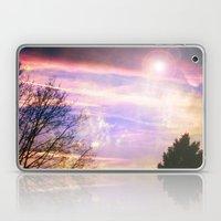 Cloud Study Pt5 Laptop & iPad Skin