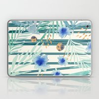 SUMMERTIME STRIPES Laptop & iPad Skin