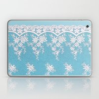 Love of Turquoise #lace Laptop & iPad Skin