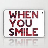 I Smile... Laptop & iPad Skin
