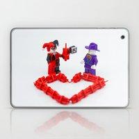 Valentines Laptop & iPad Skin