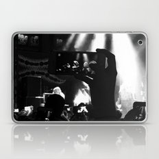 Are You Listening? Laptop & iPad Skin