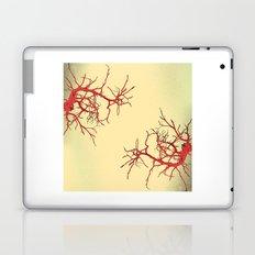 branches#03 Laptop & iPad Skin