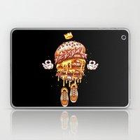 King Burger Laptop & iPad Skin
