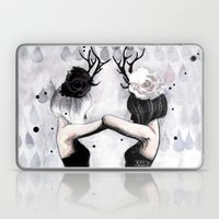 Castor Laptop & iPad Skin