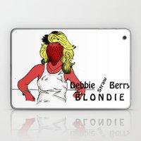 Debbie Straw-Berry   Blondie Laptop & iPad Skin