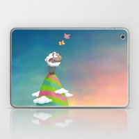 Willo Laptop & iPad Skin