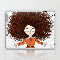Crassetignasse Laptop & iPad Skin