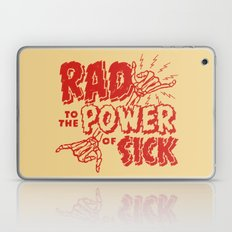 Rad To The Power Of Sick… Laptop & iPad Skin